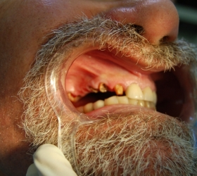 Elderly man with serious dental issue