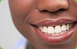 Full Bright Functional Smile