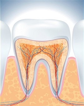 root-canal2