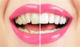 teeth-bleaching2
