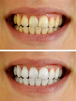 teeth-bleaching3