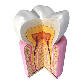 wisdom-tooth1