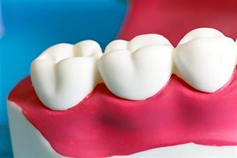 wisdom-tooth3