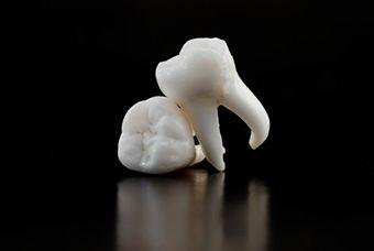 wisdom-tooth4